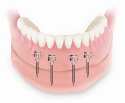 denture on implants